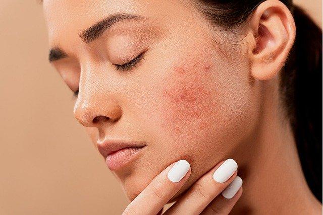 Proper skin hygiene